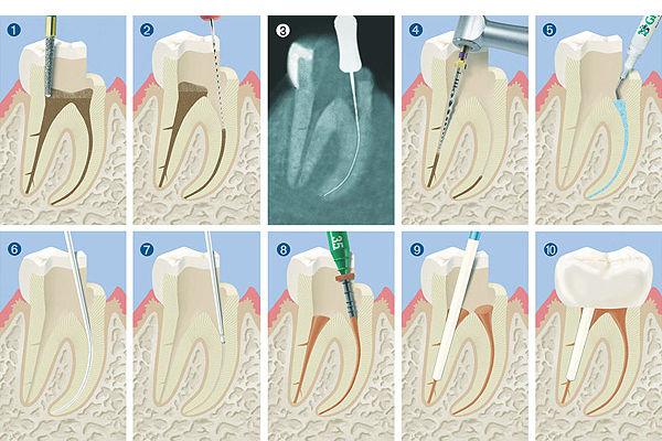 Moderne Endodontie: Behandlungsablauf